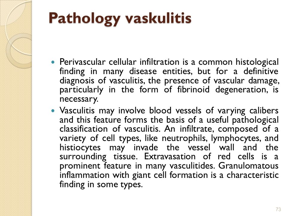 Pathology vaskulitis Perivascular cellular infiltration is a common histological finding in many disease entities, but for a definitive diagnosis of v