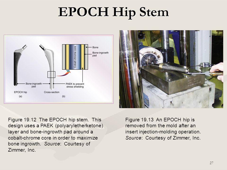 27 EPOCH Hip Stem Figure 19.12 The EPOCH hip stem. This design uses a PAEK (polyaryletherketone) layer and bone-ingrowth pad around a cobalt-chrome co