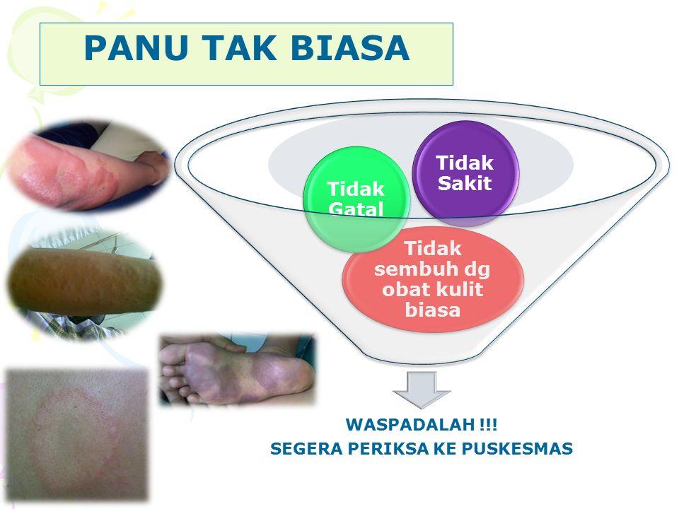 Penyakit kusta Sebagian besar populasi tdk bisa ketularan (95%) Untuk menular perlu kontak lama dan erat Yg sdh MDT sd RFT Tidak menular lagi