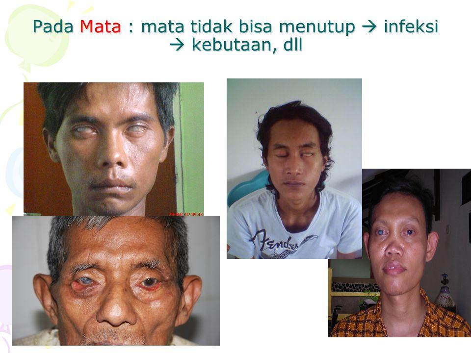 Kecacatan Karena Kusta Bisa terjadi pada : Mata Tangan Kaki Program P2 Kusta di Jawa Timur mulai tahun 1994, penemuan penderita baru per tahun 5.000 s/d 6.000 dan rata-rata Proposi Cacat tingkat II sebesar 12% (7.641 orang)