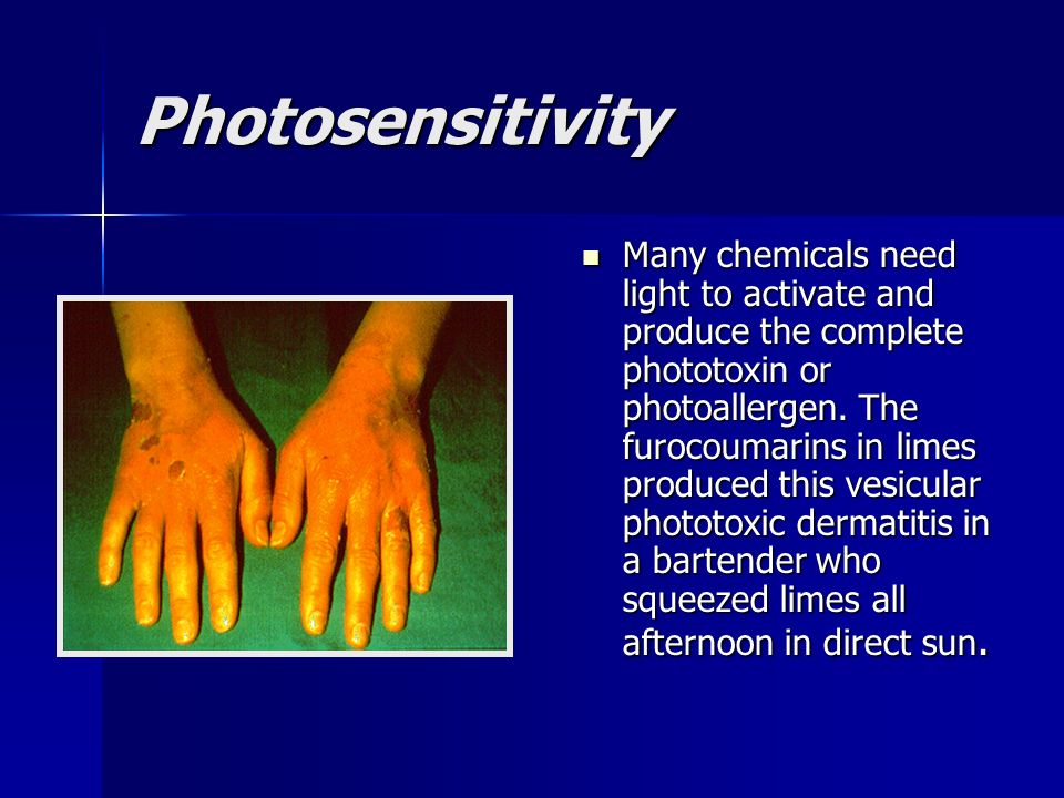 Photosensitivity Many chemicals need light to activate and produce the complete phototoxin or photoallergen. The furocoumarins in limes produced this