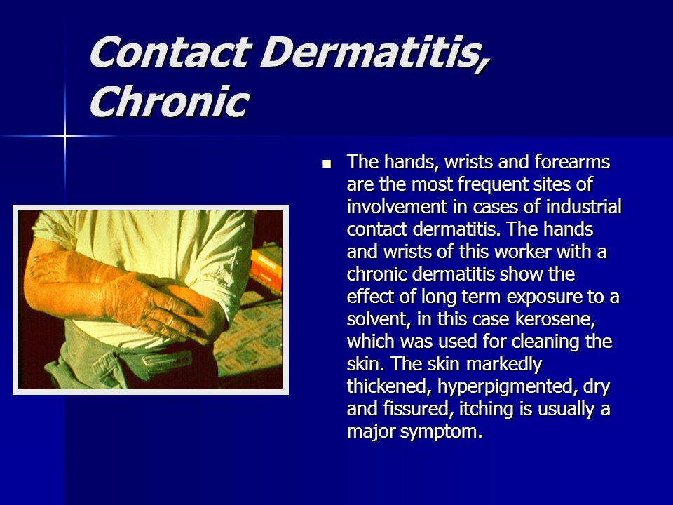 Contact Dermatitis, Chronic The hands, wrists and forearms are the most frequent sites of involvement in cases of industrial contact dermatitis. The h