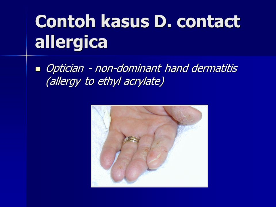 Contoh kasus D. contact allergica Optician - non-dominant hand dermatitis (allergy to ethyl acrylate) Optician - non-dominant hand dermatitis (allergy