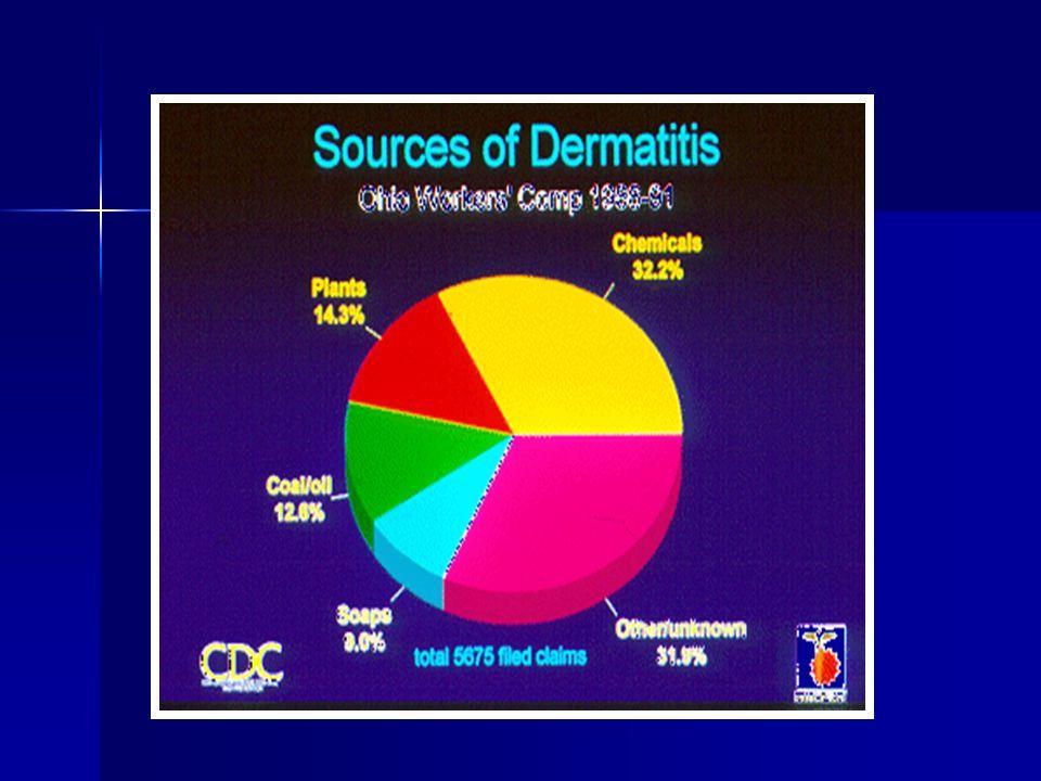 Prognosis D.iritant, acne, infeksi  menyembuh sth agen penyebab dijauhkan D.