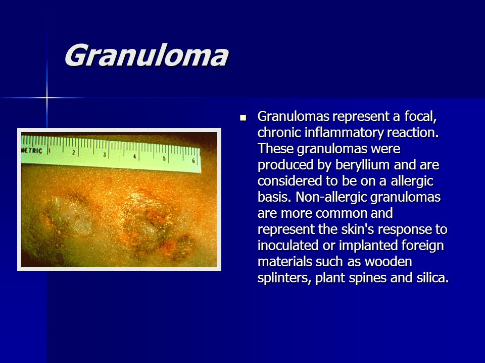 Granuloma Granulomas represent a focal, chronic inflammatory reaction. These granulomas were produced by beryllium and are considered to be on a aller