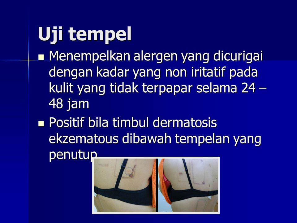 Uji tempel Menempelkan alergen yang dicurigai dengan kadar yang non iritatif pada kulit yang tidak terpapar selama 24 – 48 jam Menempelkan alergen yang dicurigai dengan kadar yang non iritatif pada kulit yang tidak terpapar selama 24 – 48 jam Positif bila timbul dermatosis ekzematous dibawah tempelan yang penutup Positif bila timbul dermatosis ekzematous dibawah tempelan yang penutup