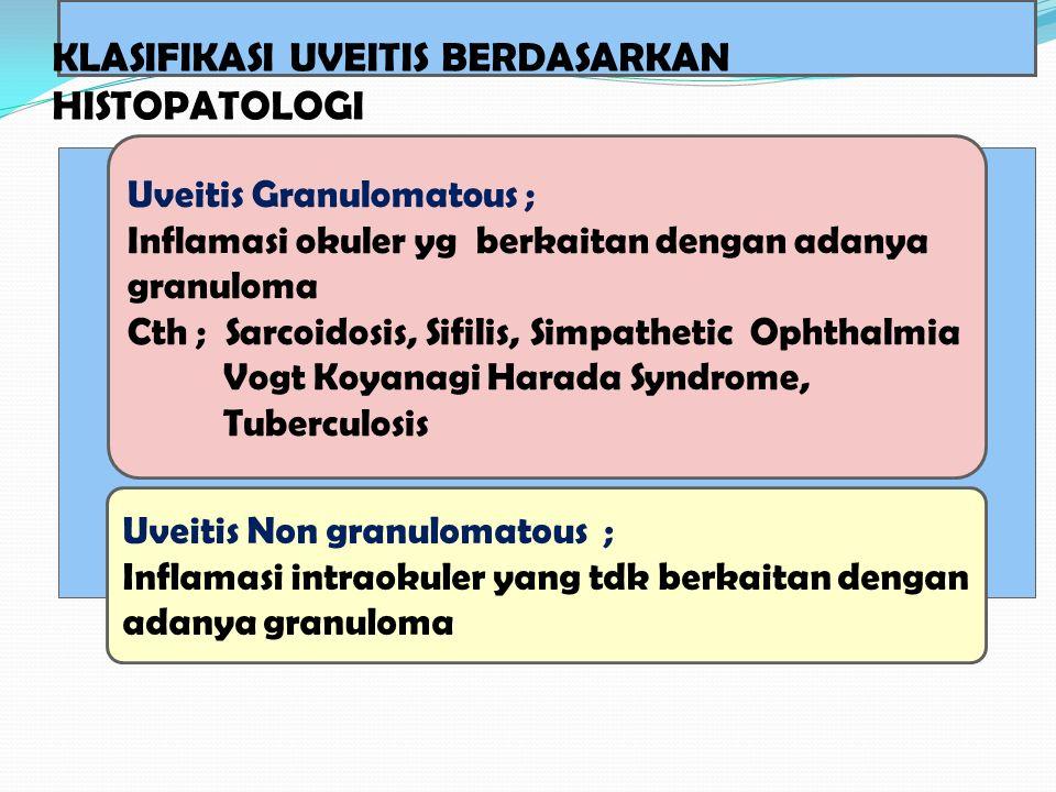 Uveitis Granulomatous ; Inflamasi okuler yg berkaitan dengan adanya granuloma Cth ; Sarcoidosis, Sifilis, Simpathetic Ophthalmia Vogt Koyanagi Harada
