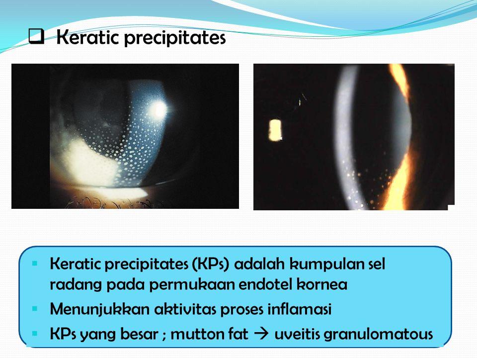  Keratic precipitates  Keratic precipitates (KPs) adalah kumpulan sel radang pada permukaan endotel kornea  Menunjukkan aktivitas proses inflamasi