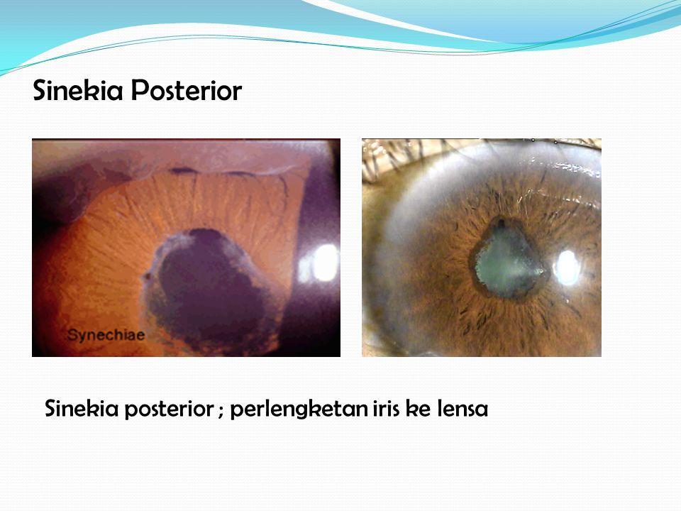 Sinekia Posterior Sinekia posterior ; perlengketan iris ke lensa