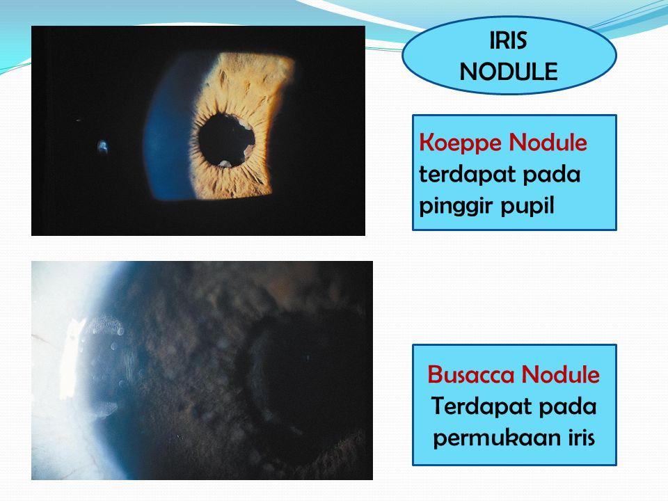 Busacca Nodule Terdapat pada permukaan iris Koeppe Nodule terdapat pada pinggir pupil IRIS NODULE
