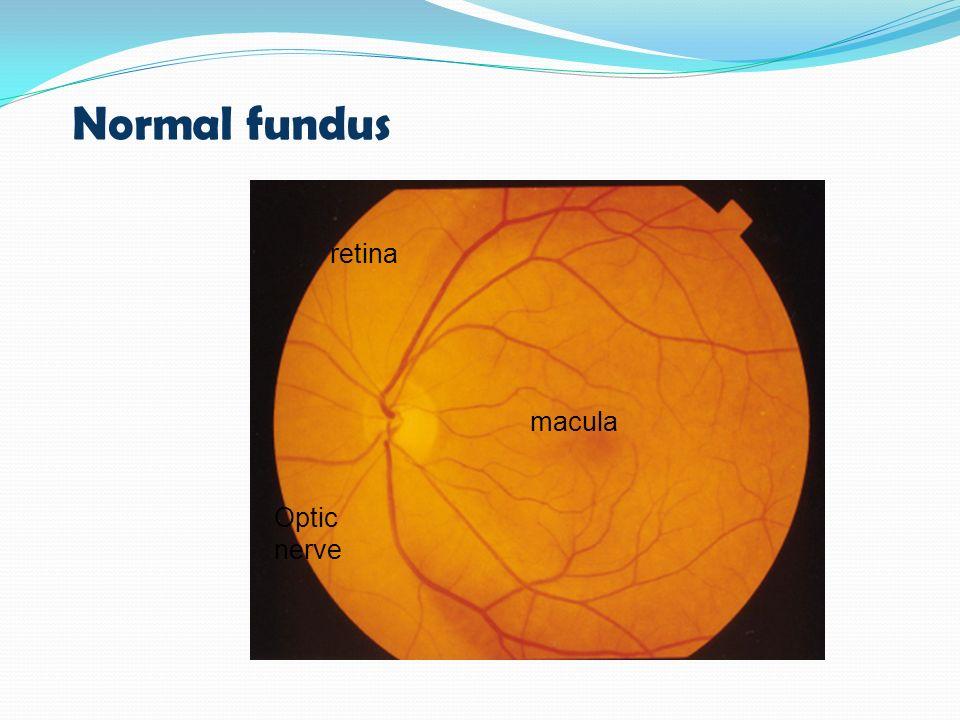 Normal fundus Optic nerve macula retina