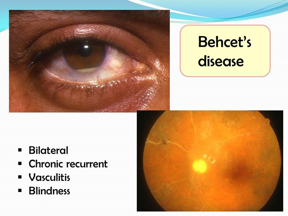 Behcet's disease  Bilateral  Chronic recurrent  Vasculitis  Blindness