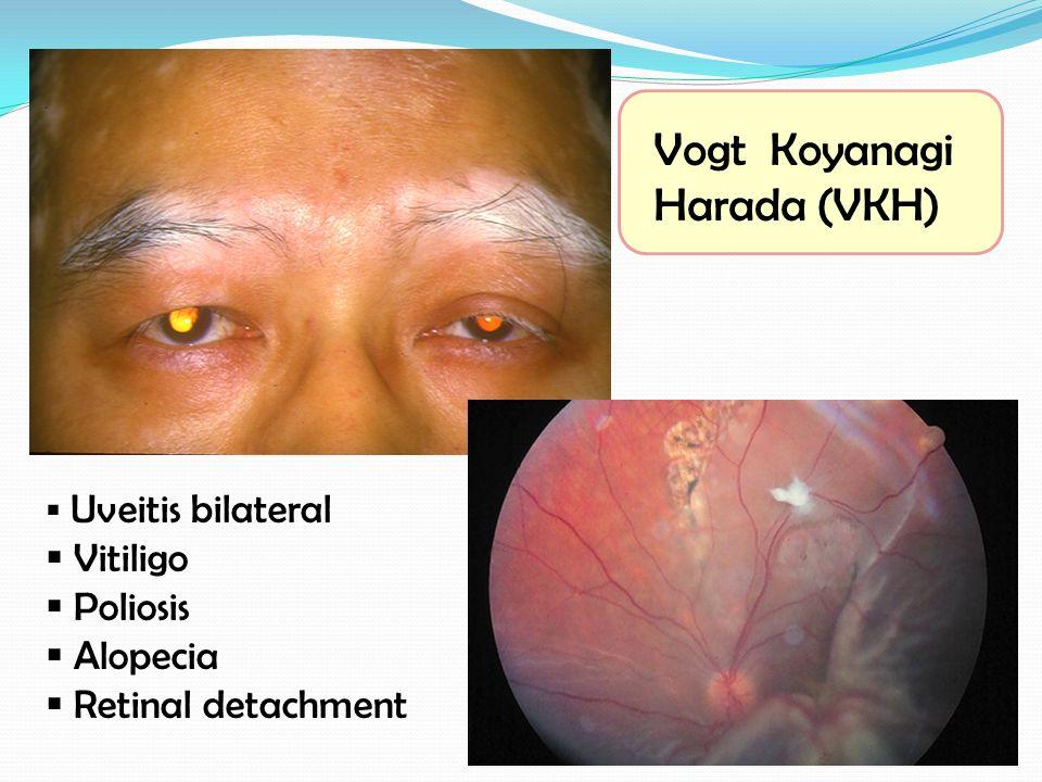  Uveitis bilateral  Vitiligo  Poliosis  Alopecia  Retinal detachment Vogt Koyanagi Harada (VKH)
