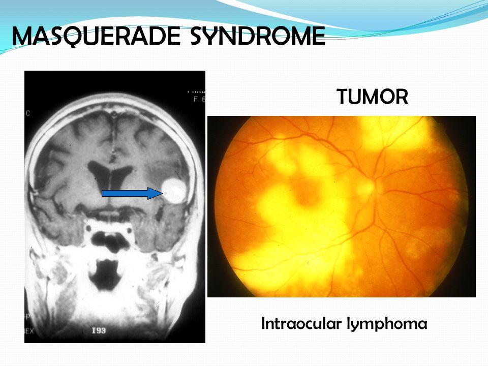 Intraocular lymphoma TUMOR