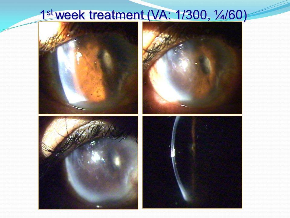 1 st week treatment (VA: 1/300, ¼/60)