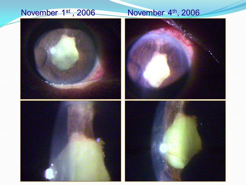 November 1 st, 2006 November 4 th, 2006