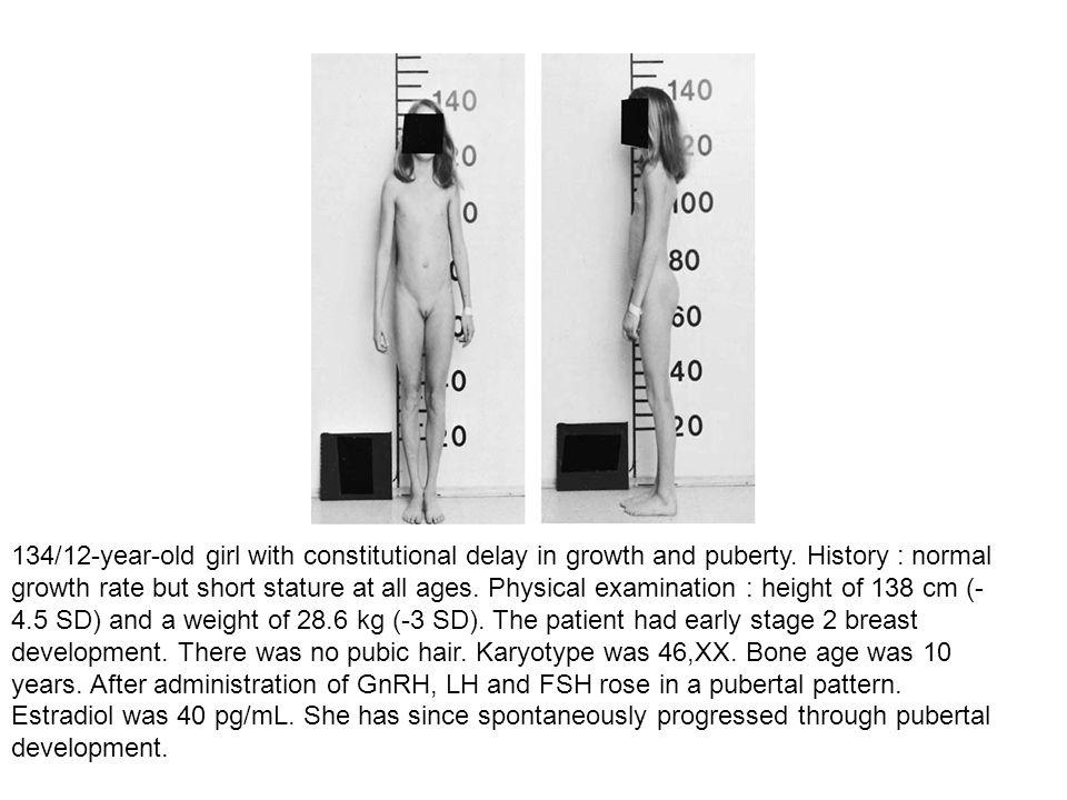 134/12-year-old girl with constitutional delay in growth and puberty. History : normal growth rate but short stature at all ages. Physical examination
