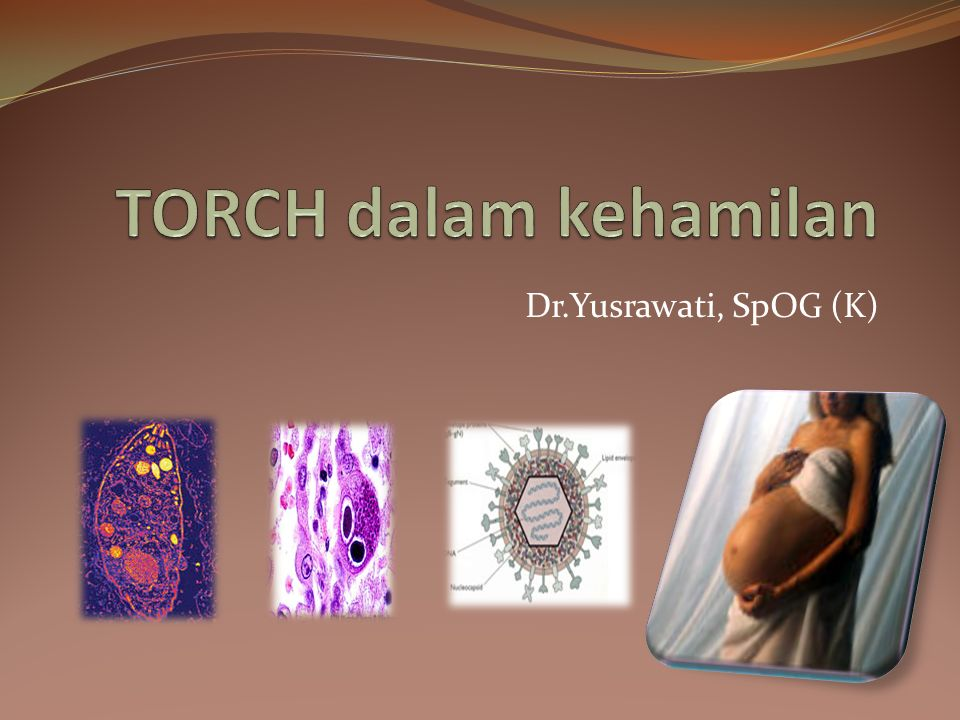 TOKSOPLASMA GONDII Toksoplasmosis pada kehamilan dapat menyebabkan infeksi janin kongenital.