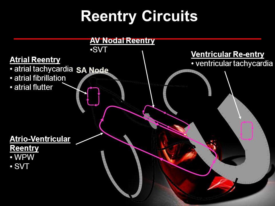 Atrial Reentry atrial tachycardia atrial fibrillation atrial flutter Atrio-Ventricular Reentry WPW SVT Ventricular Re-entry ventricular tachycardia AV