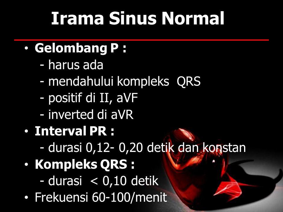 Irama Sinus Normal Gelombang P : - harus ada - mendahului kompleks QRS - positif di II, aVF - inverted di aVR Interval PR : - durasi 0,12- 0,20 detik