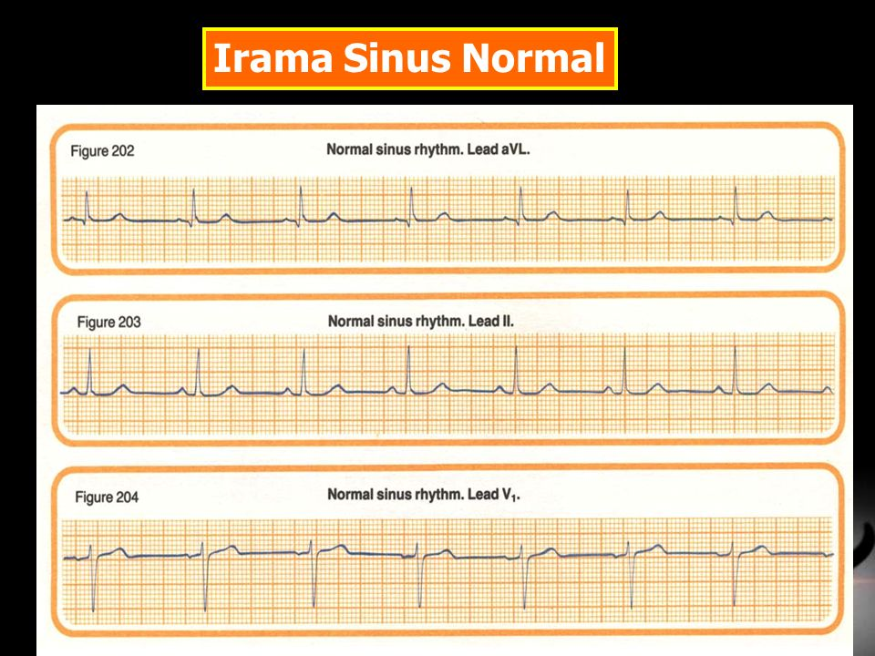 Irama Sinus Normal