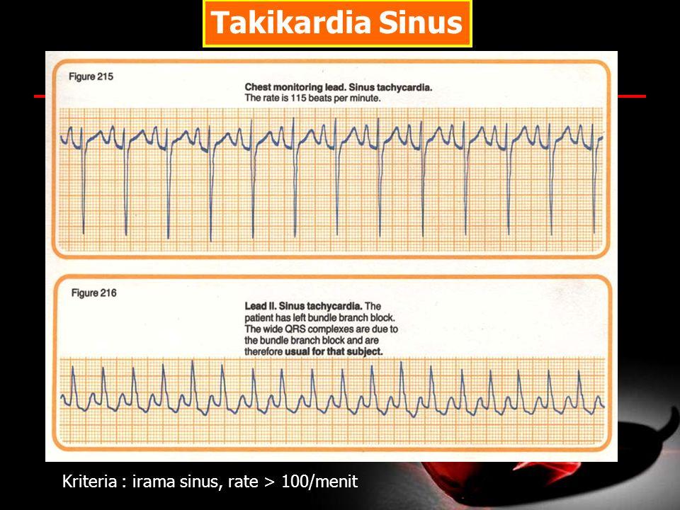 Takikardia Sinus Kriteria : irama sinus, rate > 100/menit