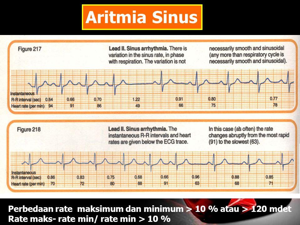 Aritmia Sinus Perbedaan rate maksimum dan minimum > 10 % atau > 120 mdet Rate maks- rate min/ rate min > 10 %