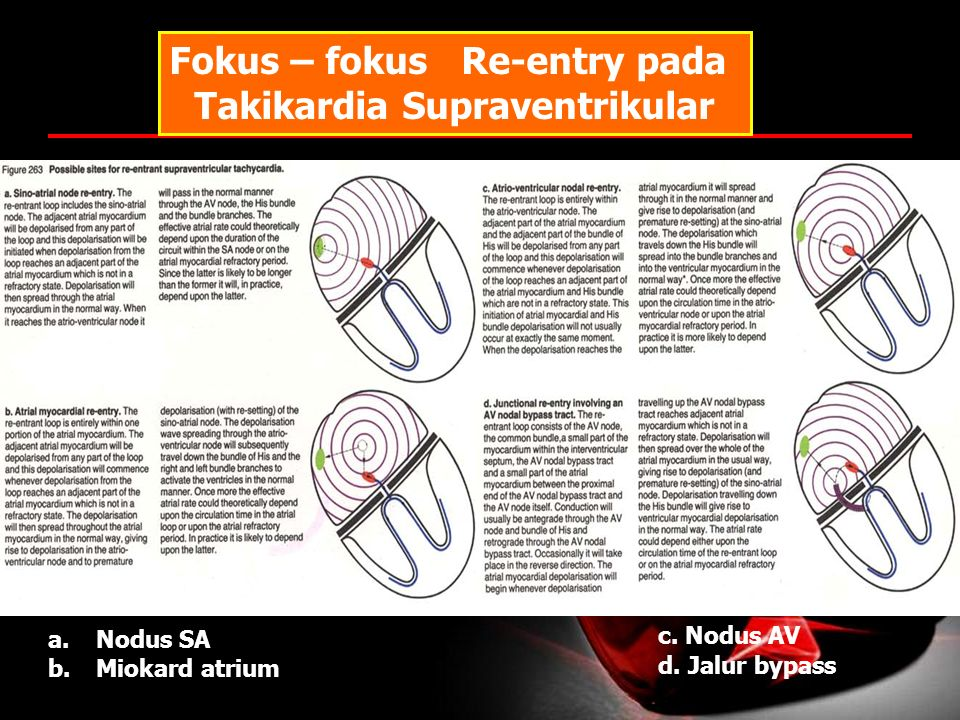 Fokus – fokus Re-entry pada Takikardia Supraventrikular a.Nodus SA b.Miokard atrium c. Nodus AV d. Jalur bypass
