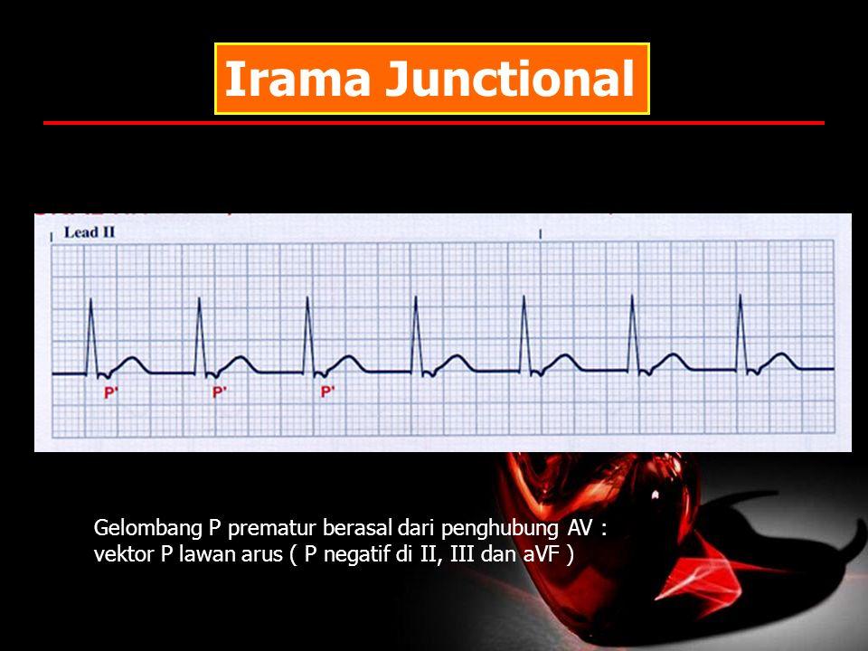 Irama Junctional Gelombang P prematur berasal dari penghubung AV : vektor P lawan arus ( P negatif di II, III dan aVF )
