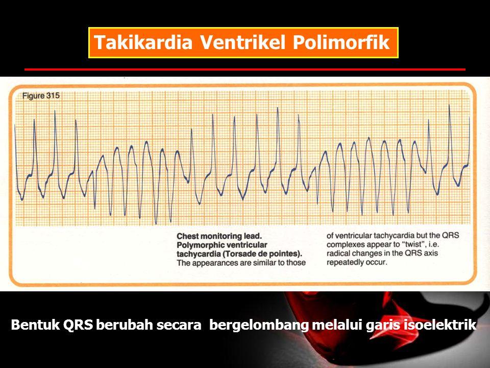 Takikardia Ventrikel Polimorfik Bentuk QRS berubah secara bergelombang melalui garis isoelektrik