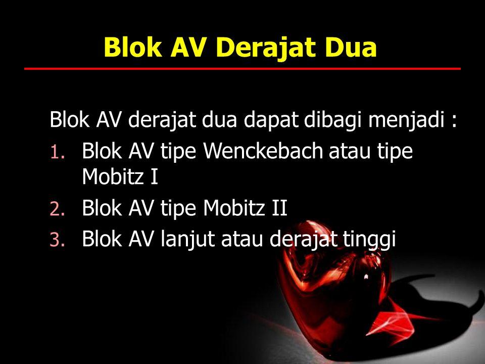 Blok AV Derajat Dua Blok AV derajat dua dapat dibagi menjadi : 1. Blok AV tipe Wenckebach atau tipe Mobitz I 2. Blok AV tipe Mobitz II 3. Blok AV lanj