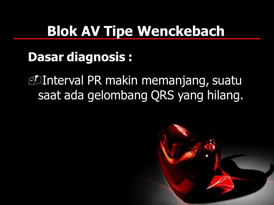 Blok AV Tipe Wenckebach Dasar diagnosis :  Interval PR makin memanjang, suatu saat ada gelombang QRS yang hilang.