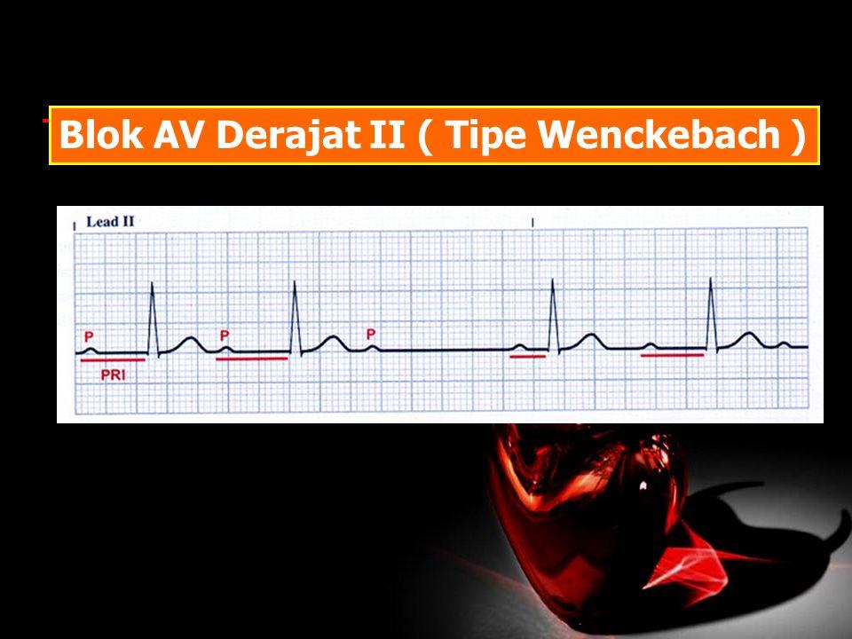 Blok AV Derajat II ( Tipe Wenckebach )