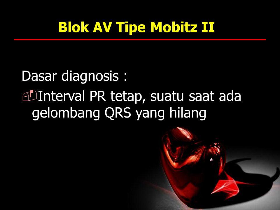 Blok AV Tipe Mobitz II Dasar diagnosis :  Interval PR tetap, suatu saat ada gelombang QRS yang hilang