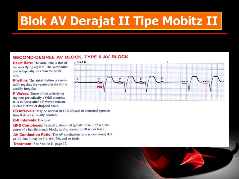 Blok AV Derajat II Tipe Mobitz II