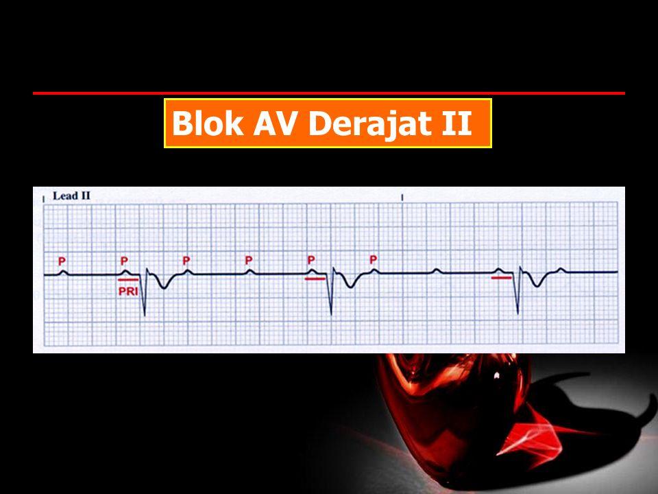Blok AV Derajat II