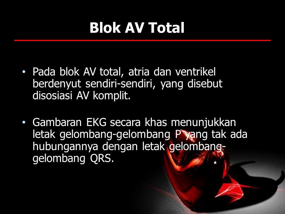 Blok AV Total Pada blok AV total, atria dan ventrikel berdenyut sendiri-sendiri, yang disebut disosiasi AV komplit. Gambaran EKG secara khas menunjukk