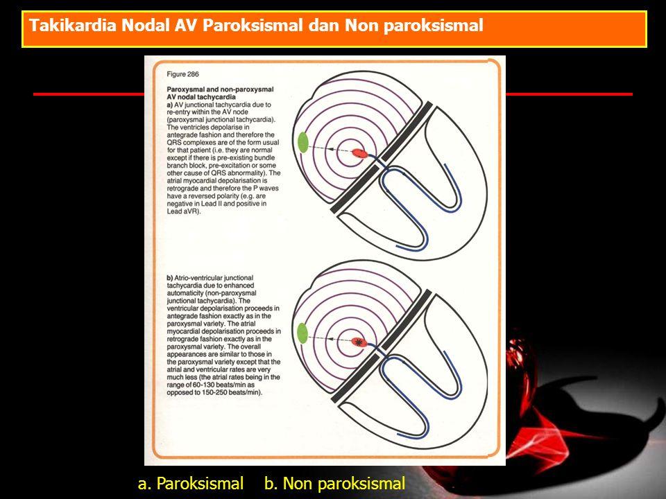 Takikardia Nodal AV Paroksismal dan Non paroksismal a. Paroksismal b. Non paroksismal