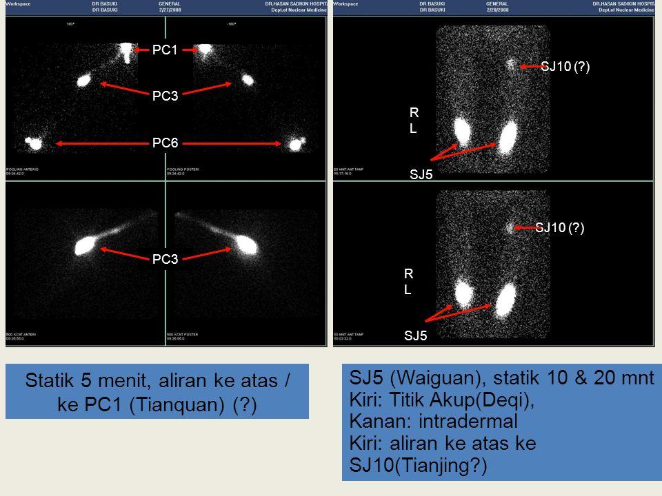 Statik 5 menit, aliran ke atas / ke PC1 (Tianquan) (?) SJ5 (Waiguan), statik 10 & 20 mnt Kiri: Titik Akup(Deqi), Kanan: intradermal Kiri: aliran ke at