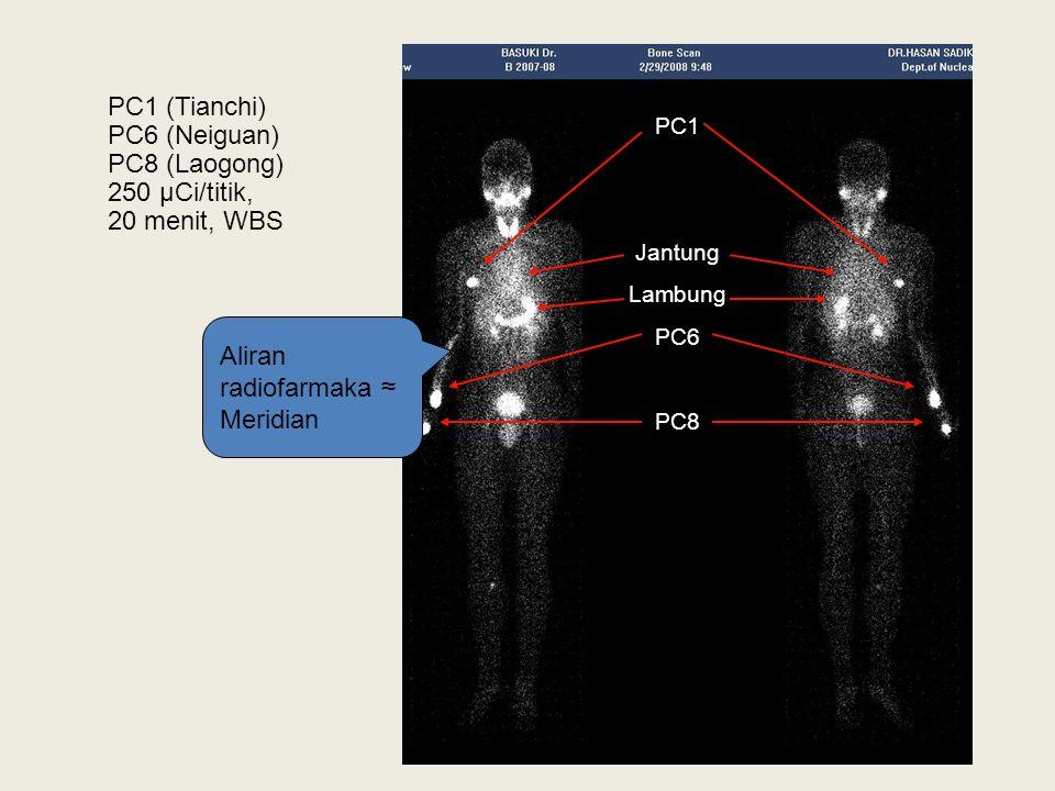 PC1 Jantung Lambung PC6 PC8 Aliran radiofarmaka ≈ Meridian PC1 (Tianchi) PC6 (Neiguan) PC8 (Laogong) 250 µCi/titik, 20 menit, WBS