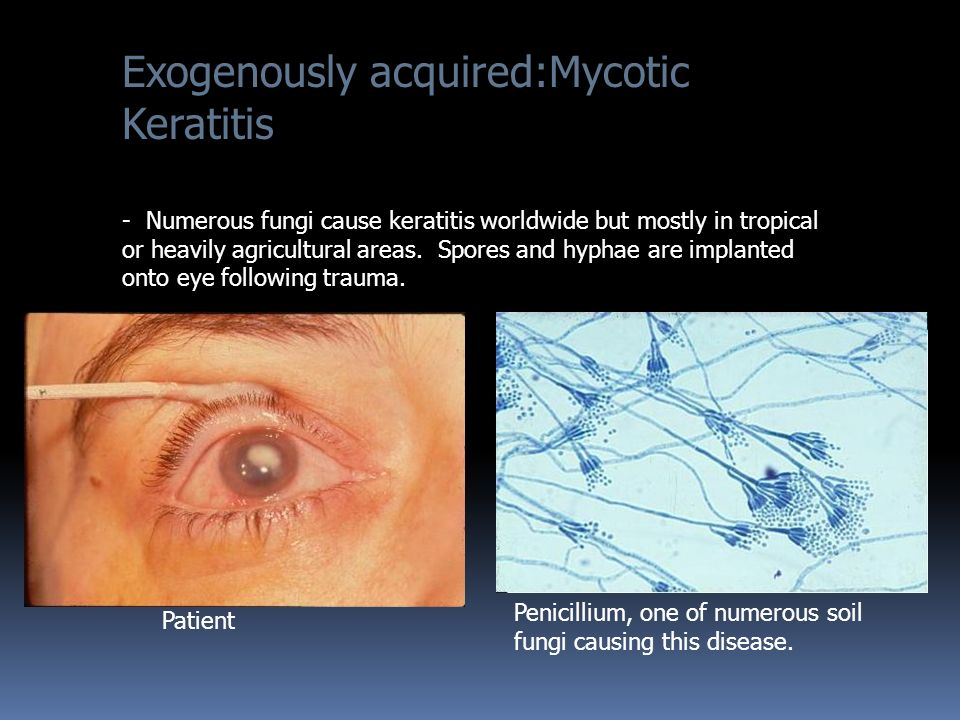 Exogenously acquired:Mycotic Keratitis - Numerous fungi cause keratitis worldwide but mostly in tropical or heavily agricultural areas.
