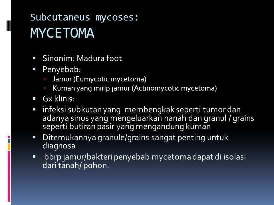 Subcutaneus mycoses: MYCETOMA  Sinonim: Madura foot  Penyebab:  Jamur (Eumycotic mycetoma)  Kuman yang mirip jamur (Actinomycotic mycetoma)  Gx k