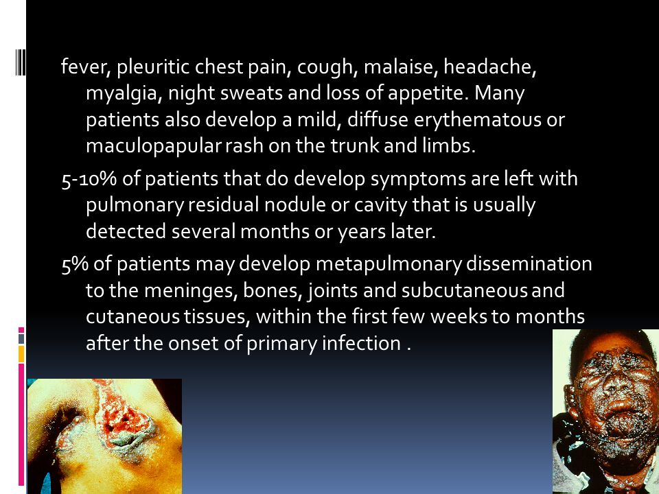 fever, pleuritic chest pain, cough, malaise, headache, myalgia, night sweats and loss of appetite.