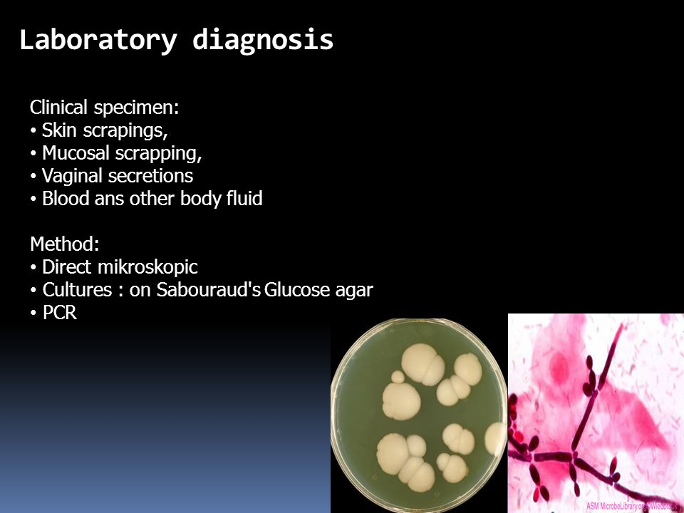 Laboratory diagnosis Clinical specimen: Skin scrapings, Mucosal scrapping, Vaginal secretions Blood ans other body fluid Method: Direct mikroskopic Cultures : on Sabouraud s Glucose agar PCR