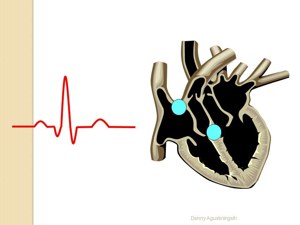 Denny Agustiningsih P Q R S T Serabut purkinje – ventrikel Nodus SA – atrium Atrium (ototnya lebih sedikit) Klw siklusnya atrium - atrial cyte Sirkula