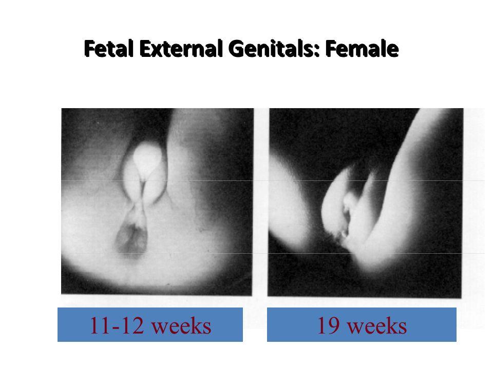 Fetal External Genitals: Female 11-12 weeks19 weeks