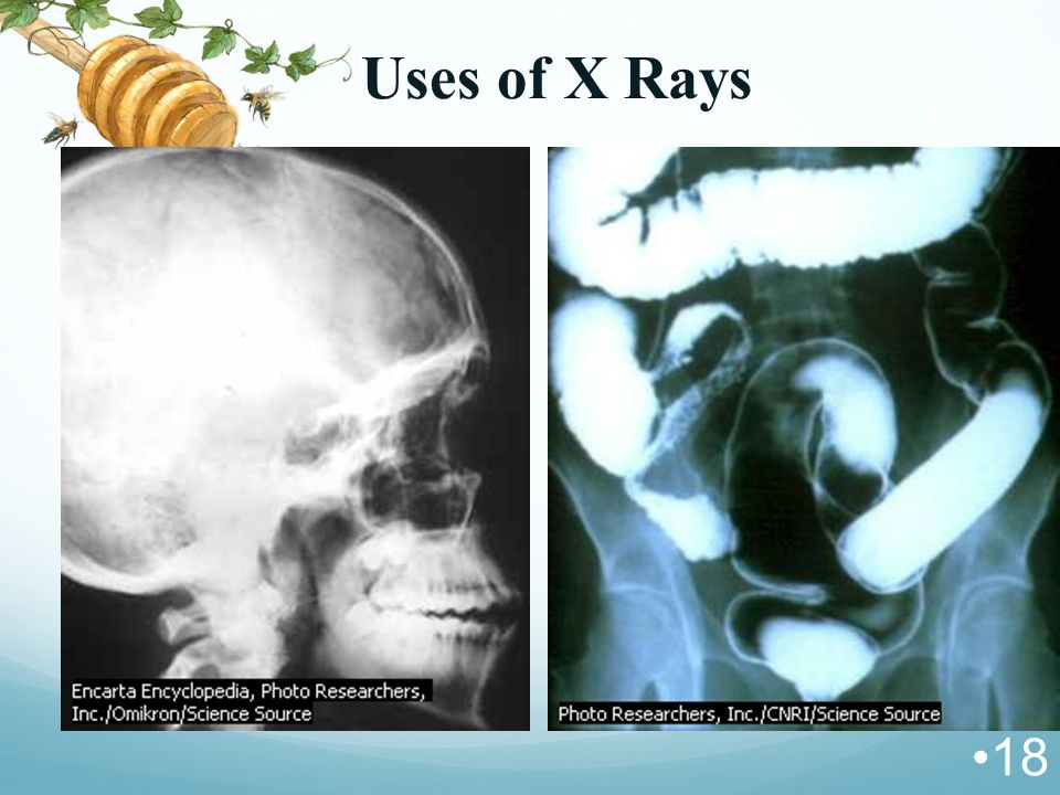 Uses of X Rays 18