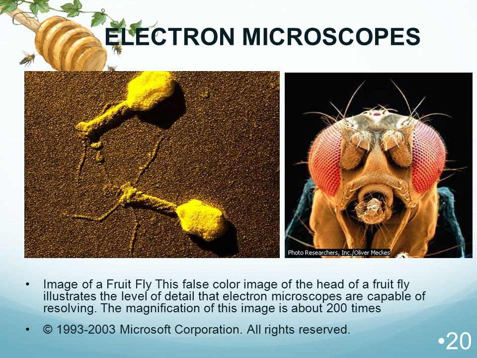 ELECTRON MICROSCOPES Image of a Fruit Fly This false color image of the head of a fruit fly illustrates the level of detail that electron microscopes
