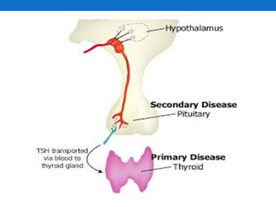 Hypothyroidism a condition in which the thyroid gland does not make enough thyroid hormone.