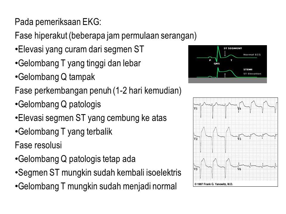 Pada pemeriksaan EKG: Fase hiperakut (beberapa jam permulaan serangan) Elevasi yang curam dari segmen ST Gelombang T yang tinggi dan lebar Gelombang Q